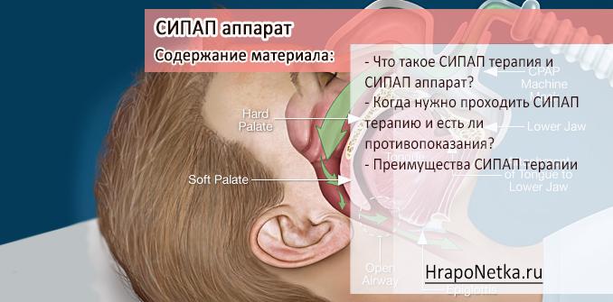 Сипап терапия: что это такое и кому показана?